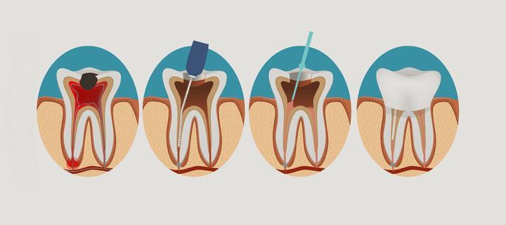 5 самых популярных мифов о заражении зубных каналов